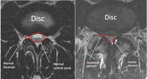 Understanding Your Mri Of The Lumbar Spine