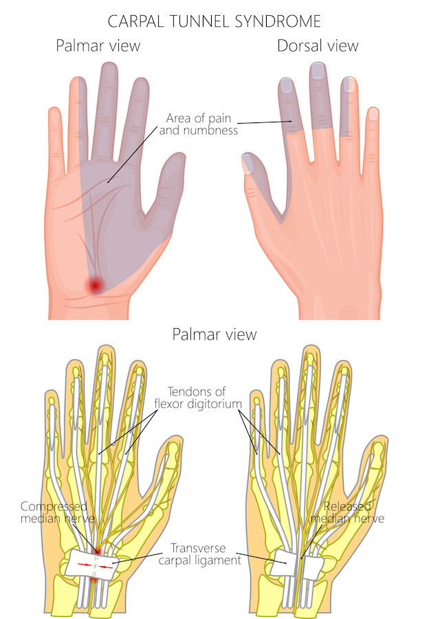 Carpal Tunnel Syndrome Rocky Mountain Brain And Spine Institute