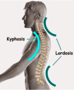 Lordosis and Spine Surgery- Like Two Peas in a Pod1