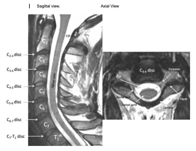 Understanding Your Cervical MRI