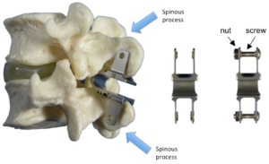 Interspinous Device