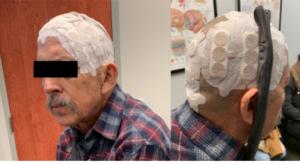 Transcranial Electric Stimulation