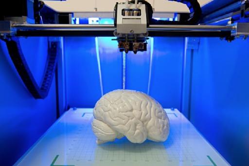 3-D Printing Advances in Neurosurgery